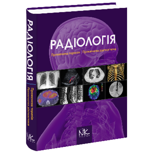 Радіологія Променева терапія Променева діагностика